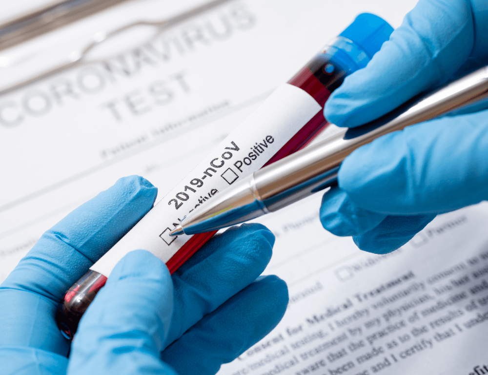 ¿Qué sabes de las pruebas para diagnóstico de COVID-19?